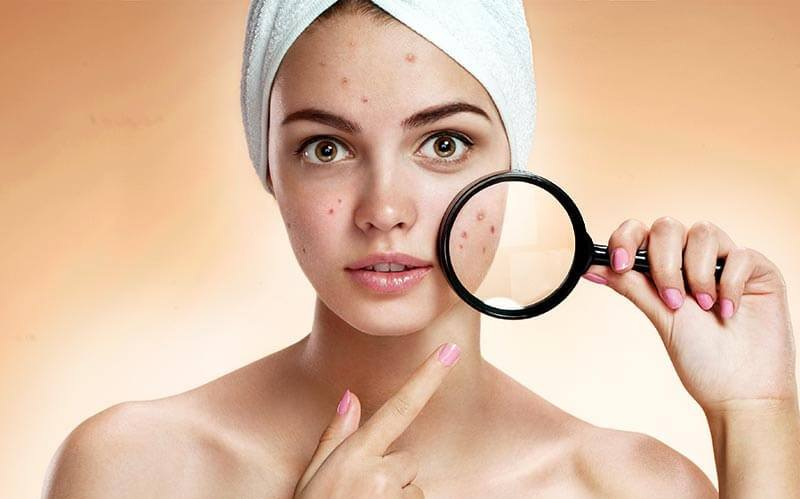 How To Prevent Pimples and Acne